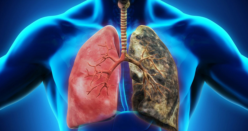 40% of Delhi schoolkids fail lung capacity test